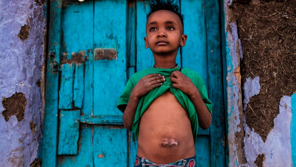 Verwundeter Junge in Tigray