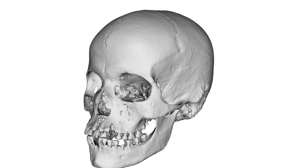 Schädel aus der Sammlung der Universität Freiburg