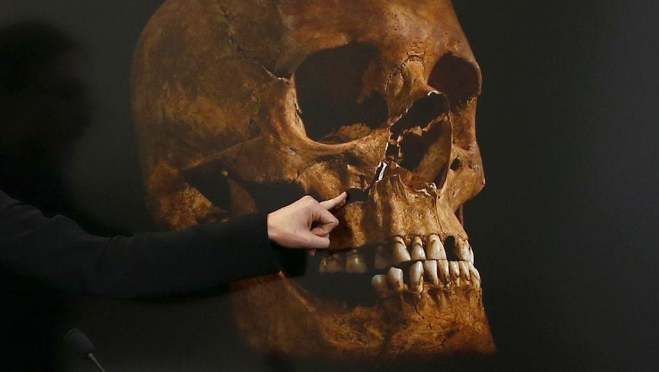 Detailarbeit: Britische Forscher untersuchen das Skelett von Richard III.