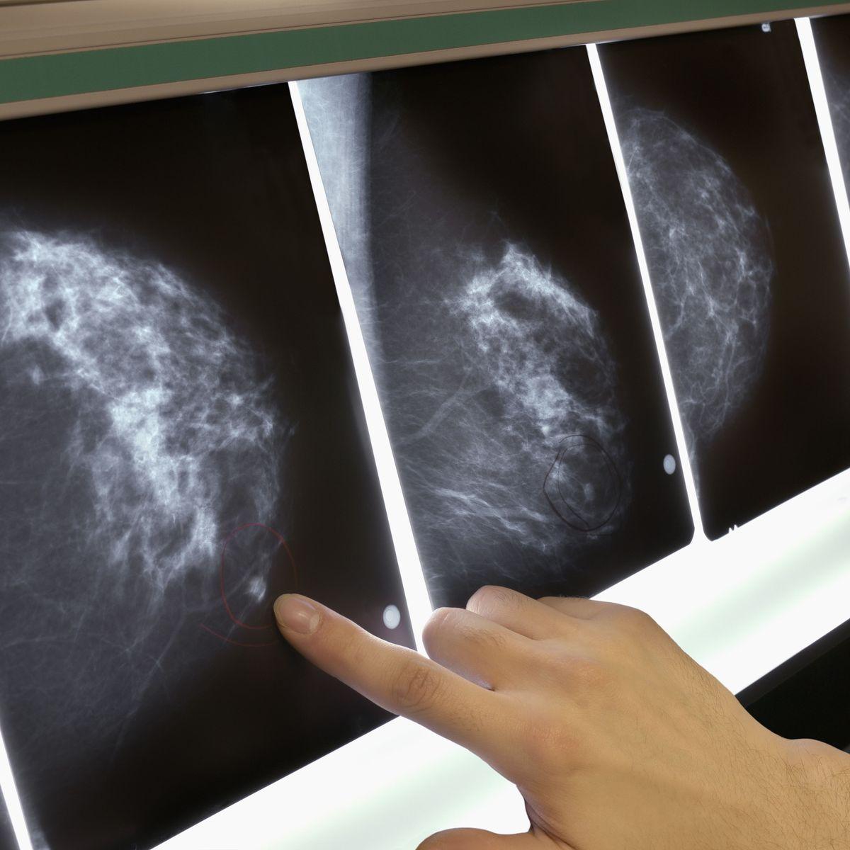diagnose von erkrankungen der brust