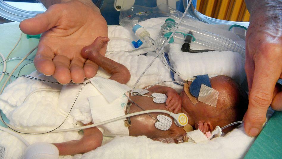 Frühchen in der Kinderklinik Hannover mit nur 430 Gramm Geburtsgewicht