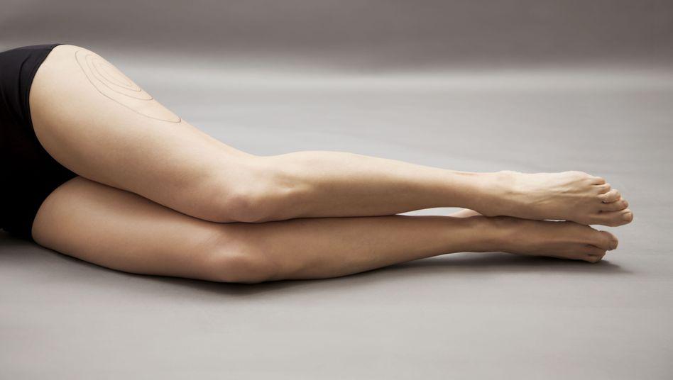 Vermeintliches Makel der Haut: Cellulite zeigt sich meist an den Oberschenkeln