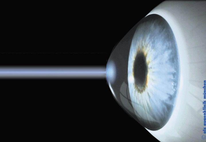 Ein Laserstrahl trifft auf das Auge