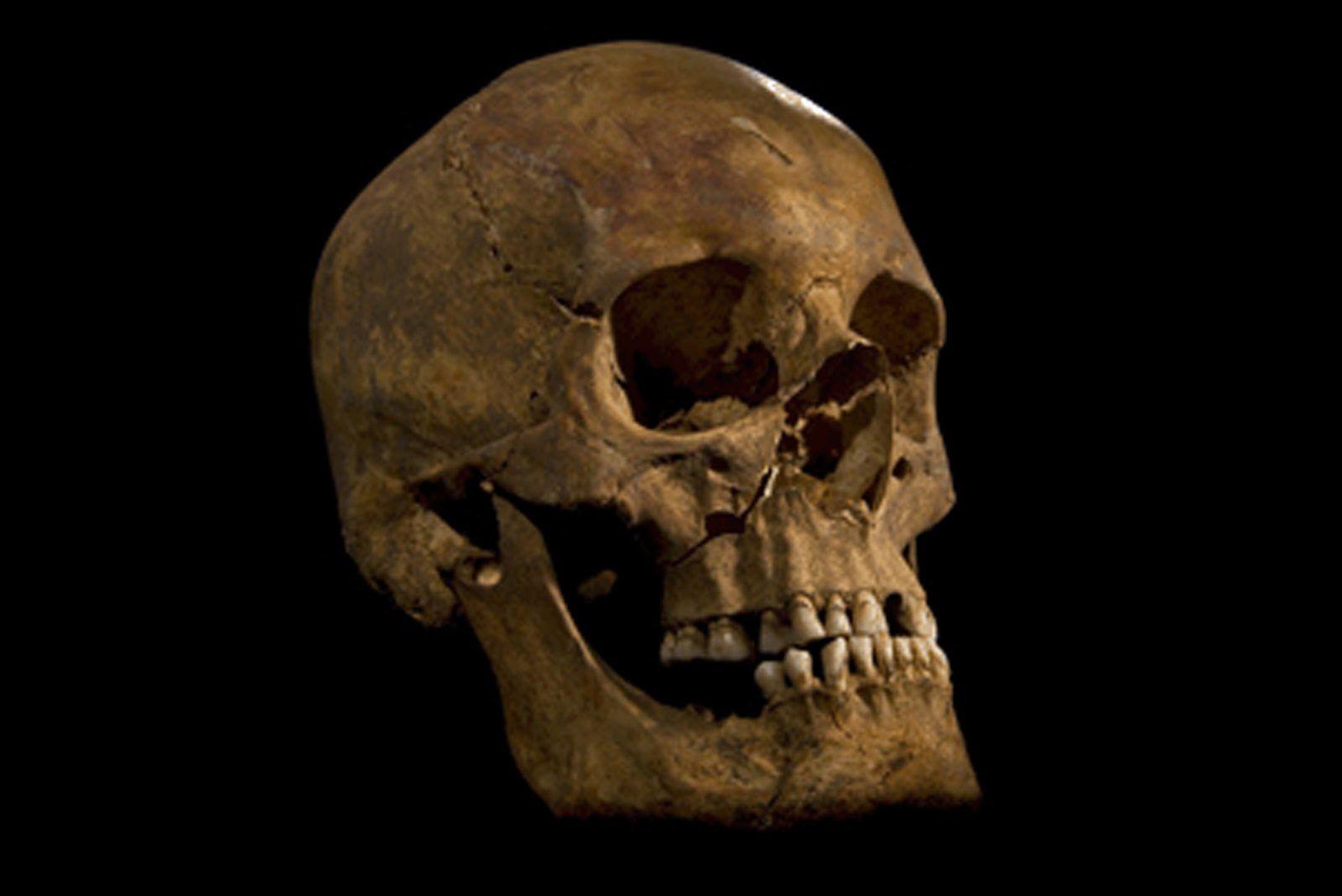 König Richard III / Knochen