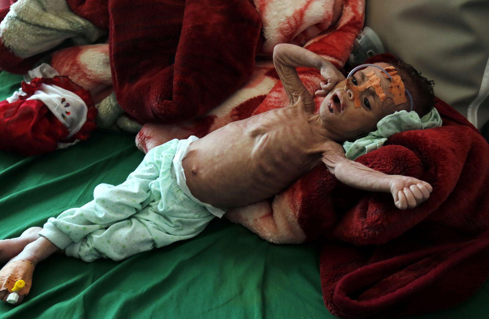 hungerndes Kind Jemen