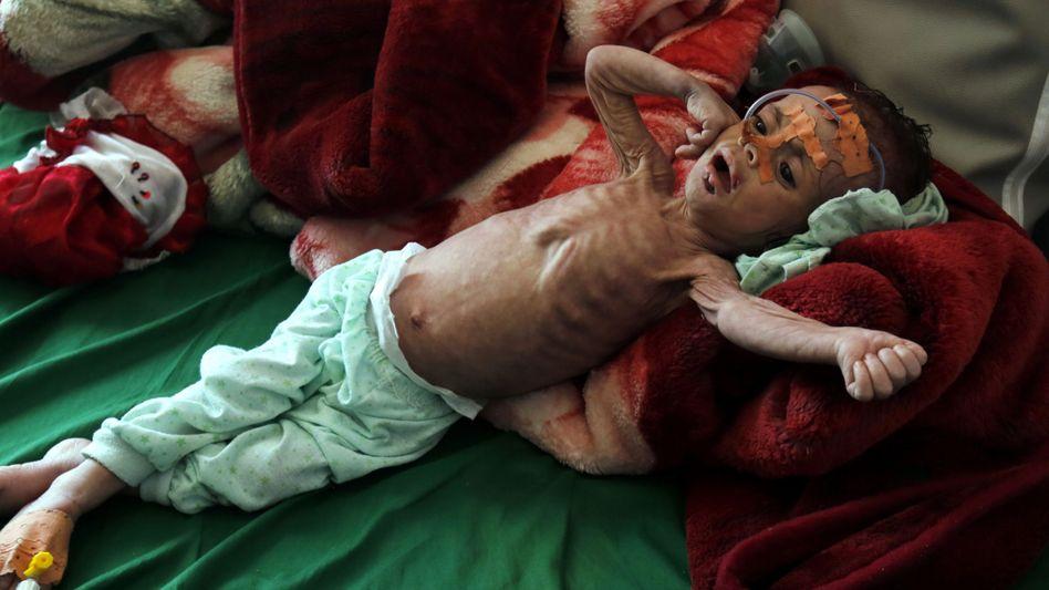 Unterernährtes Kind im Krankenhaus von Sanaa, Jemen