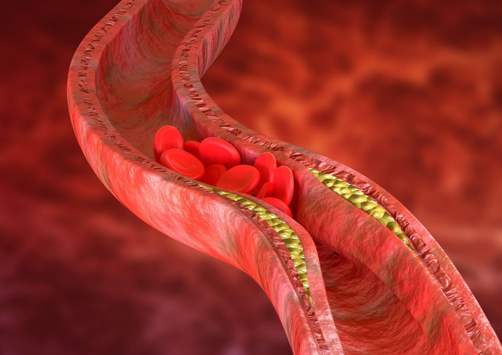 EINMALIGE VERWENDUNG Cholesterin