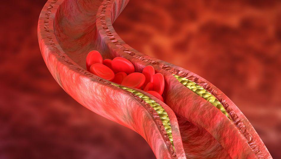 Ablagerungen können Arterien so sehr verengen, dass der Blutfluss stockt