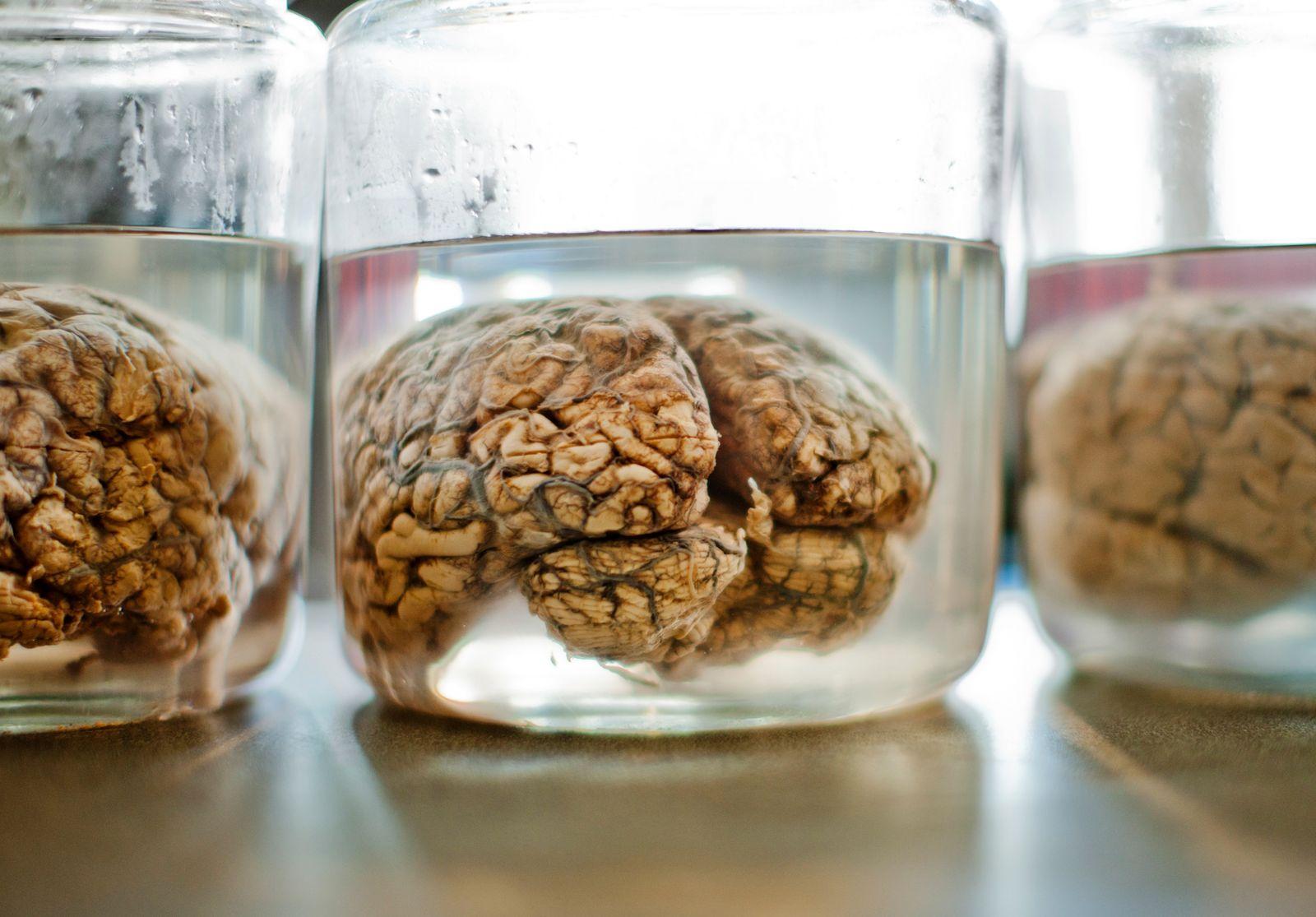 NICHT MEHR VERWENDEN! - Menschliches Gehirn