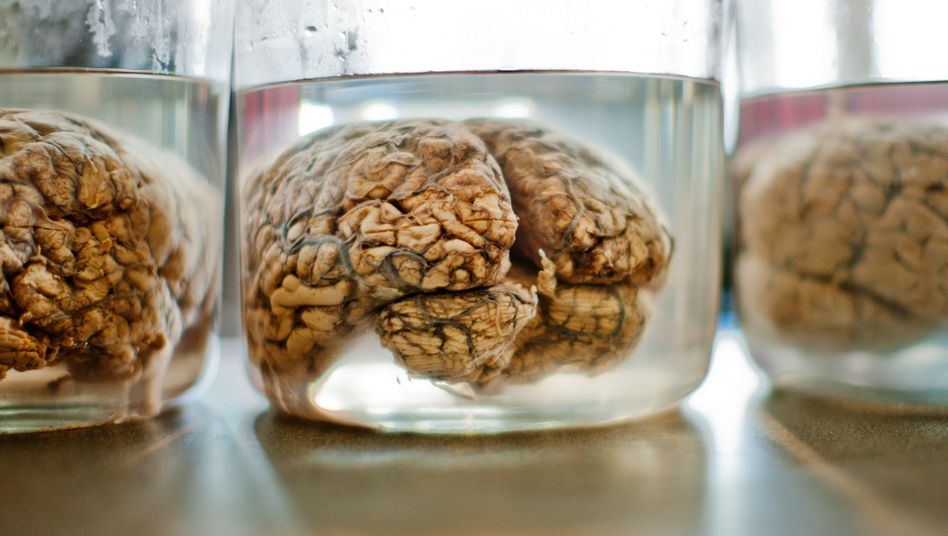 Gehirne (Archiv): Die Universität Texas sucht Teile ihrer Sammlung