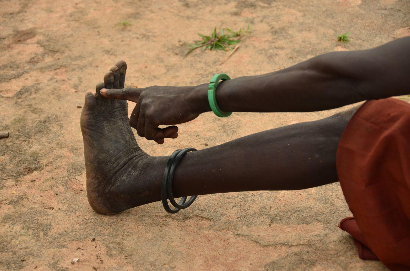 Africa Guinea Worm