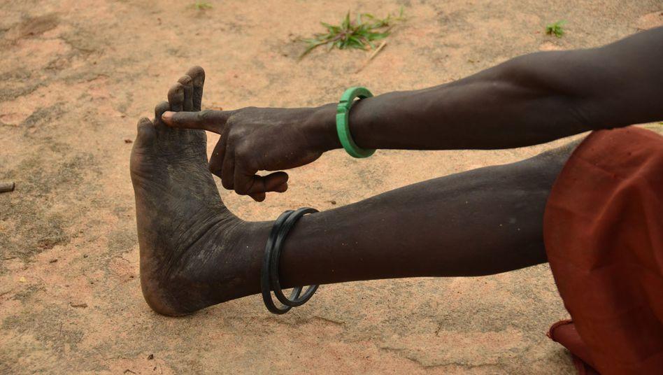Sudanerin zeigt auf die Zehe, aus der der Guineawurm kam