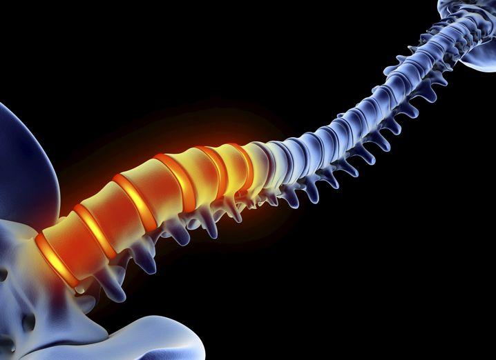 Rückenschmerz: Meist sitzt er an den Lendenwirbeln am Ende der Wirbelsäule