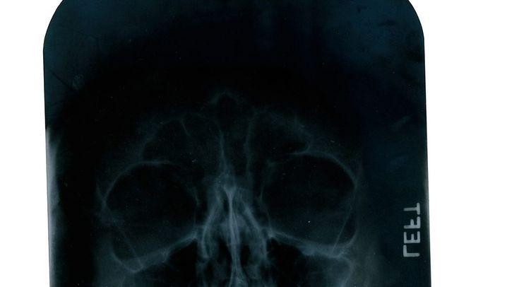 Röntgenbilder und Arztnotizen: Die Krankenakte Marilyn Monroe