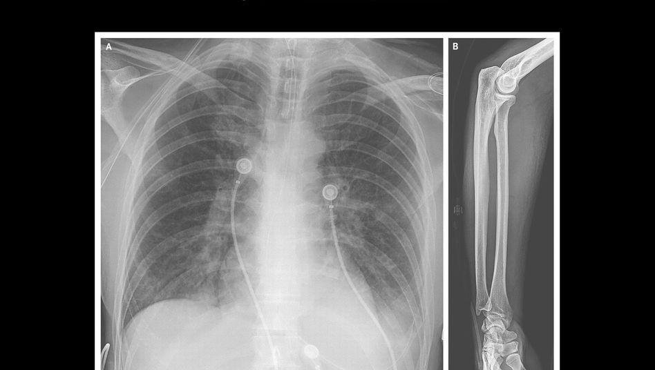 Röntgenaufnahme des Oberkörpers: Woher kommt die Flüssigkeit in der Lunge?
