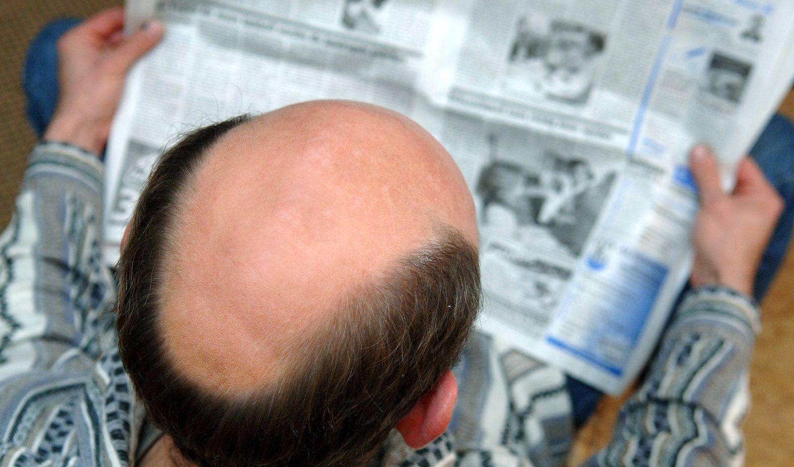 Glatze / Haarausfall