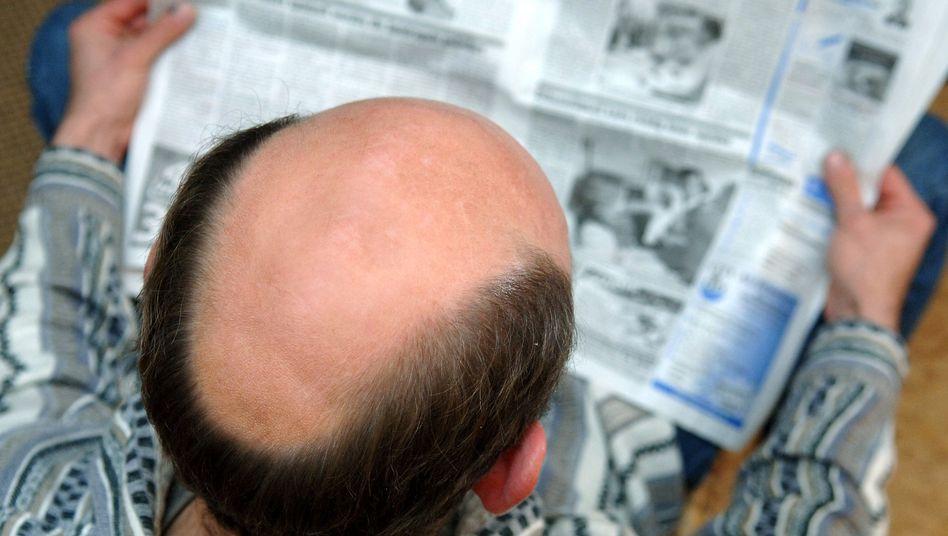 Oben ohne: Nicht jeder ist glücklich mit der Glatze