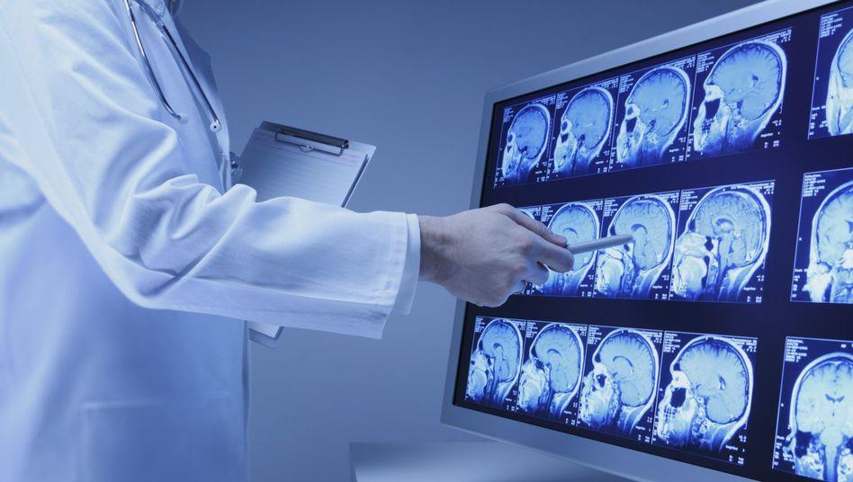 Hirnscans: Jeder Depression liegt eine Stoffwechselstörung im Gehirn zugrunde