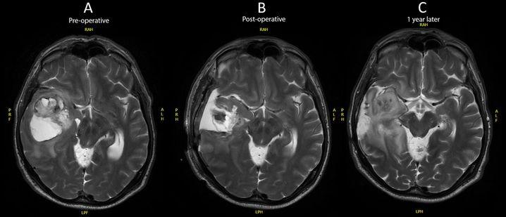 Das Gehirn des Mannes vor dem Eingriff (A) nach dem Eingriff (B) und ein Jahr später (C), als der Tumor zurückkehrt