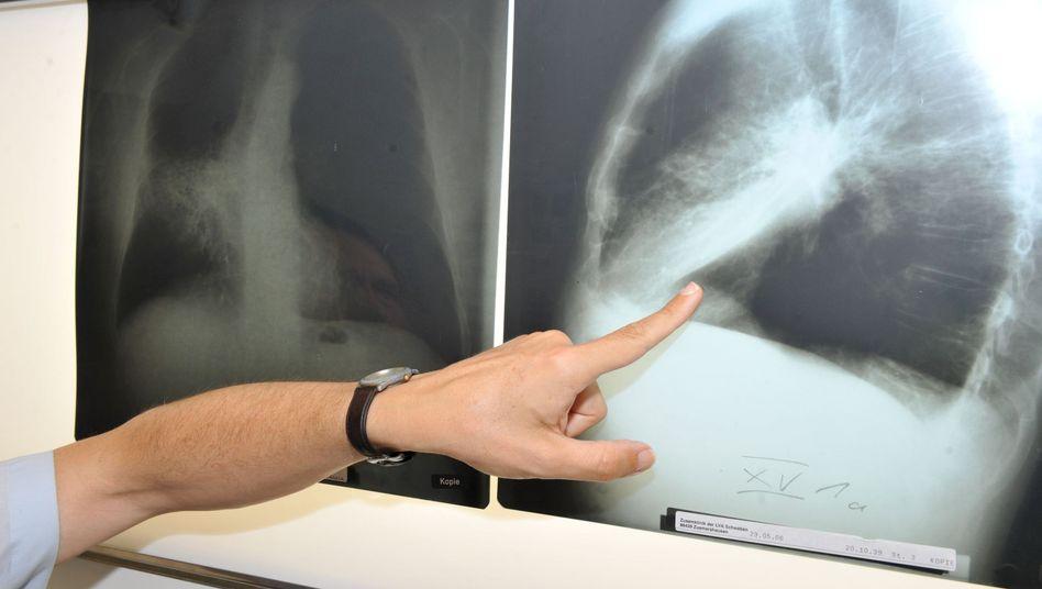 Arzt zeigt auf einem Röntgenbild auf eine mit Krebs befallene Lunge