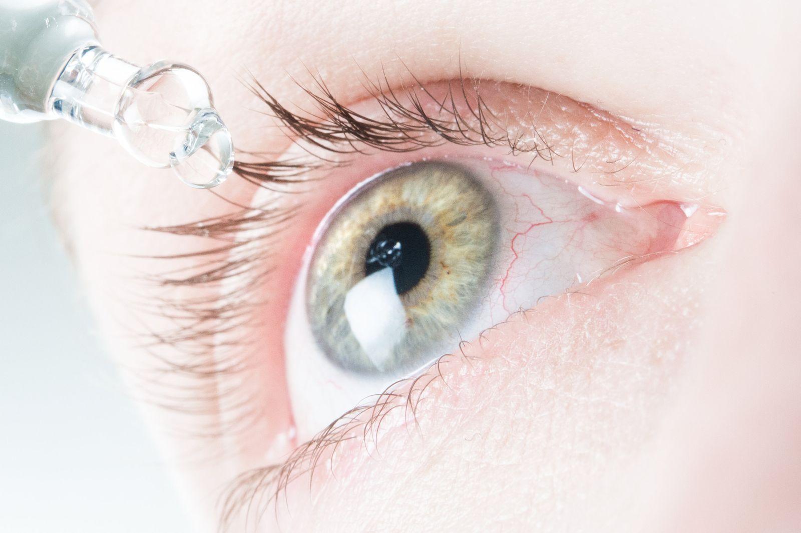 EINMALIGE VERWENDUNG Augentrockenheit/ Office-Eye-Syndrom