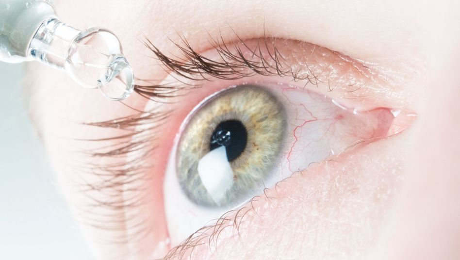 Befeuchtende Tropfen können bei trockenen Augen helfen