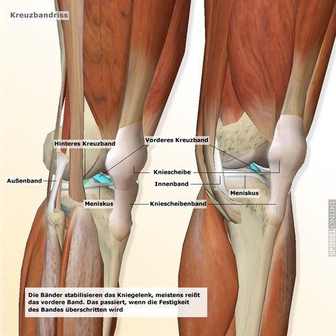 Kreuzbänder: Schwachstelle des Kniegelenks