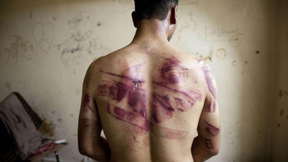 Syrischer Mann mit Folterspuren