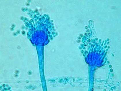 Aspergillus-Pilz: Der Schädling passt problemlos durch Kissenhüllen