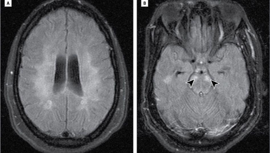 MRT-Bilder vom Kopf der Patientin: Die weißen Punkte sind vermutlich Entmarkungsherde, die durch die Multiple Sklerose entstanden sind