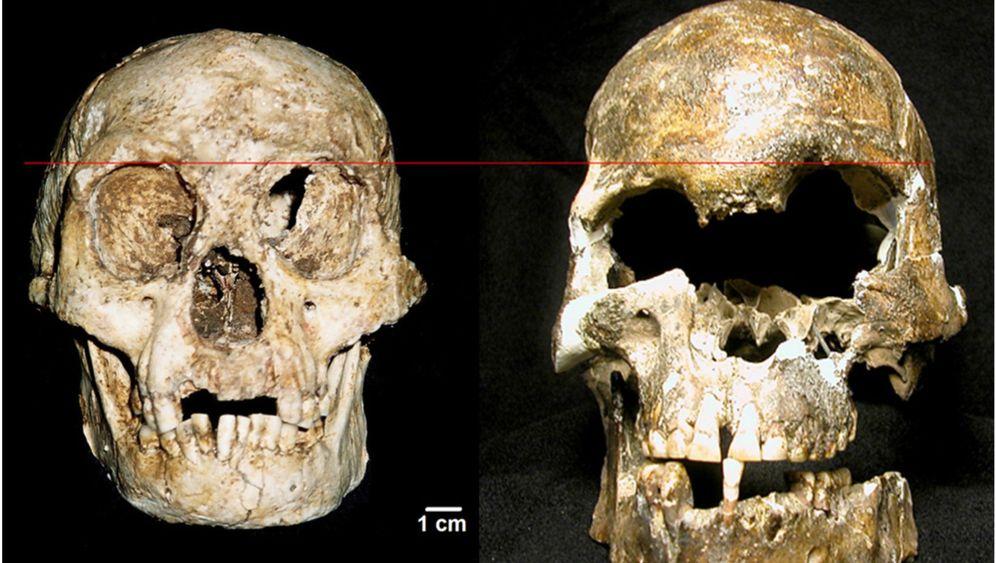 Hobbit: Homo floresiensis litt am Down-Syndrom